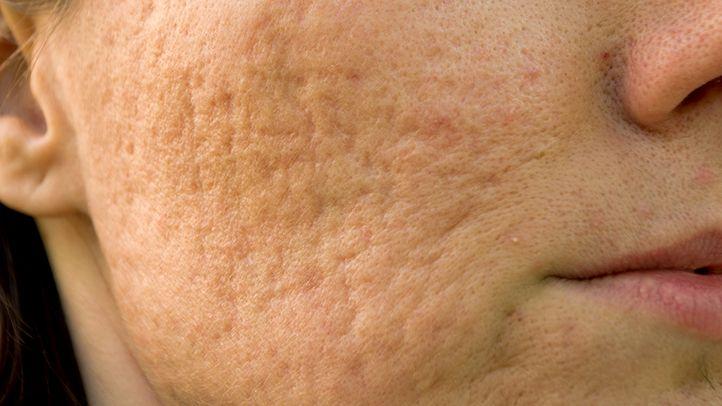 آموزش شناخت کرم ها و ترمیم کننده های پوست